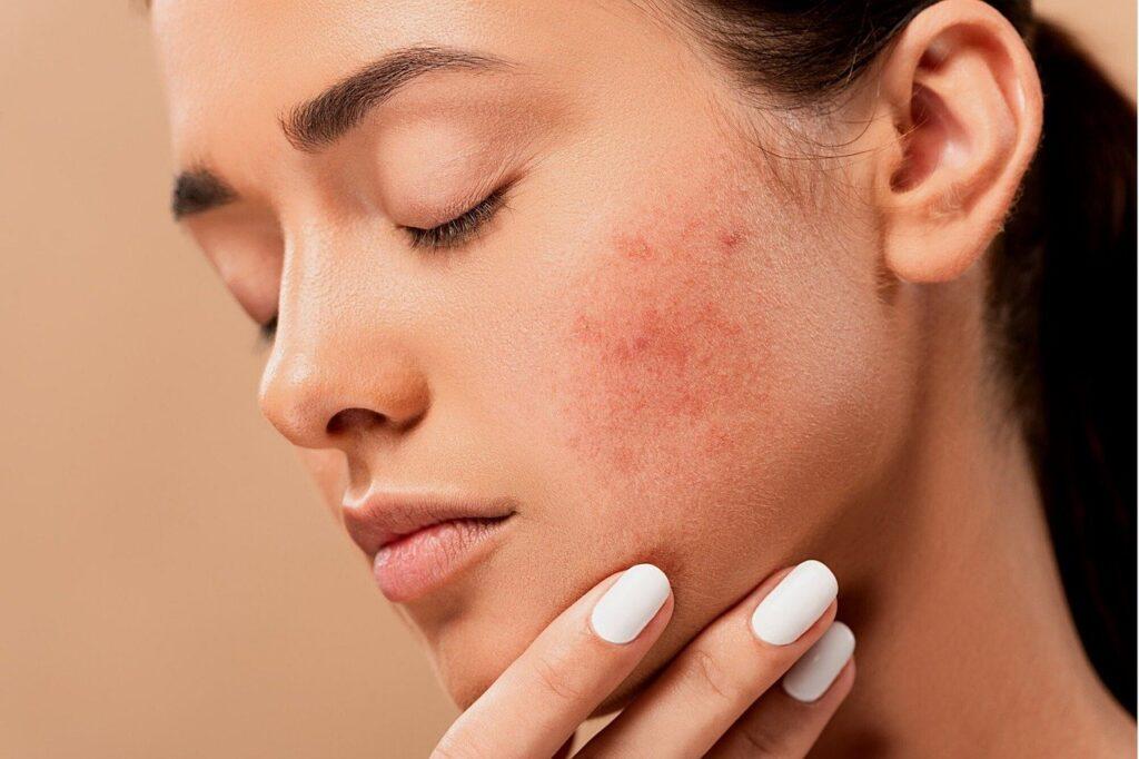 acne, pimples, spots